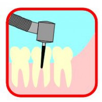 Root Canal Instuments